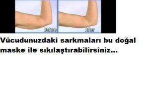 Read more about the article Vücuttaki sarkmalara bu maske ile son verin