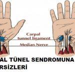 Karpal tünel sendromu için egzersiz nasıl yapılır