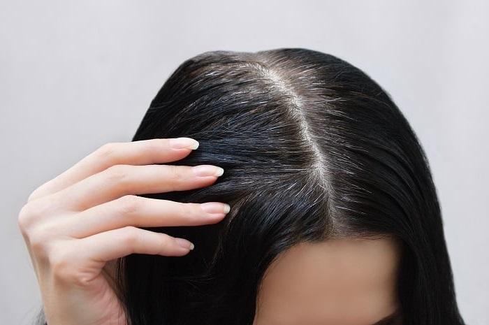 Saçtaki beyazları gidermenin doğal yolu