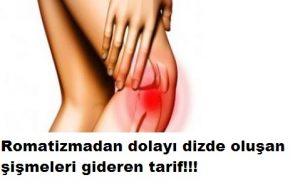 Read more about the article DİZ ŞİŞLİĞİ GİDEREN DOĞAL TARİF