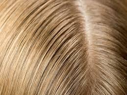 Read more about the article Saçlardaki yağlılığı gideren doğal tarif