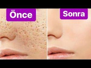 Read more about the article Gözenek sıkılaştırıcı maske tarifi