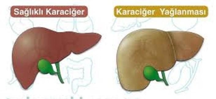 Karaciğer yağlanmasını gideren doğal yöntem