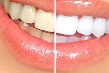 Dişleri beyazlatacak doğal tarif